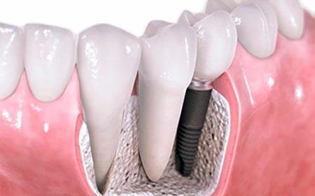 Имплантация зубов стоимость виды и цены в Екатеринбурге