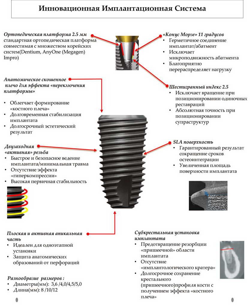 Установка Инновационной имплантационной системы